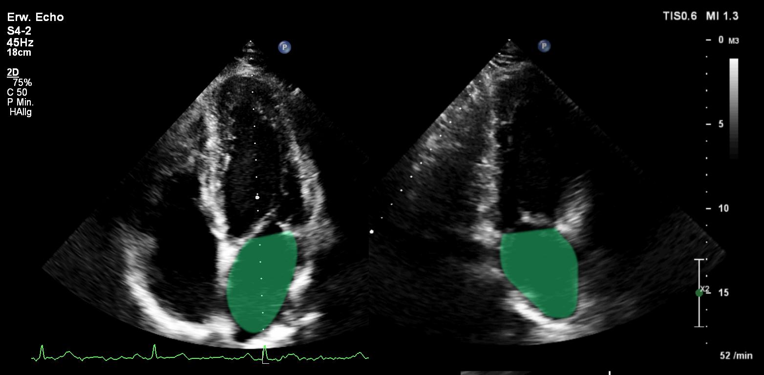 echo-intensiv, Echokardiographie Blog, die Beurteilung der..